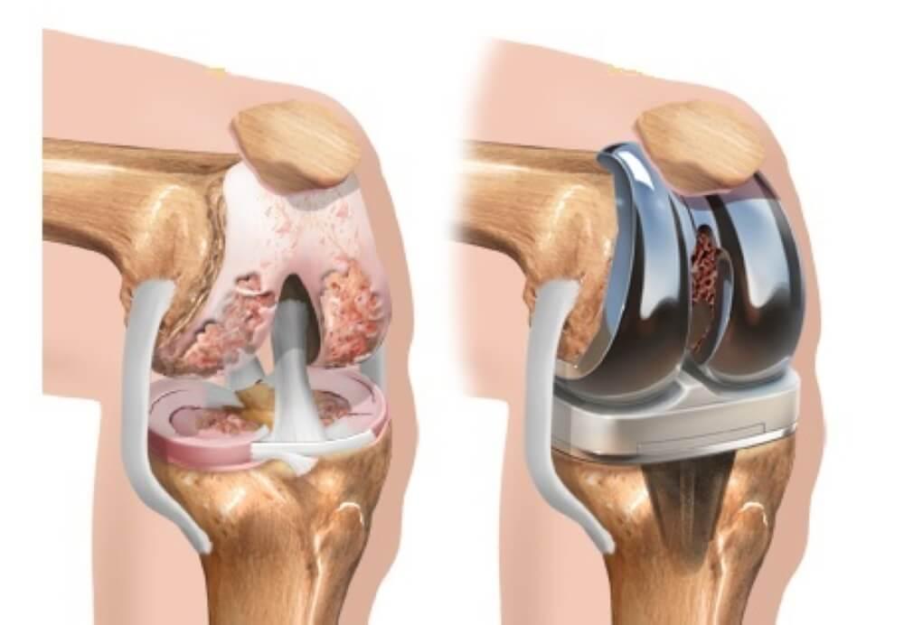 Σύγχρονα δεδομένα για την οστεοαρθρίτιδα του γόνατος