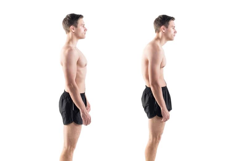 Ο ρόλος της στάσης του σώματος στην Υγεία μας: Καλή vs Κακής
